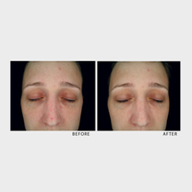 Spot Correction by Hydropeptide