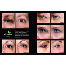 Wrinkles Crows Feet Puffiness Facial Lines Lifts Eye by phyto